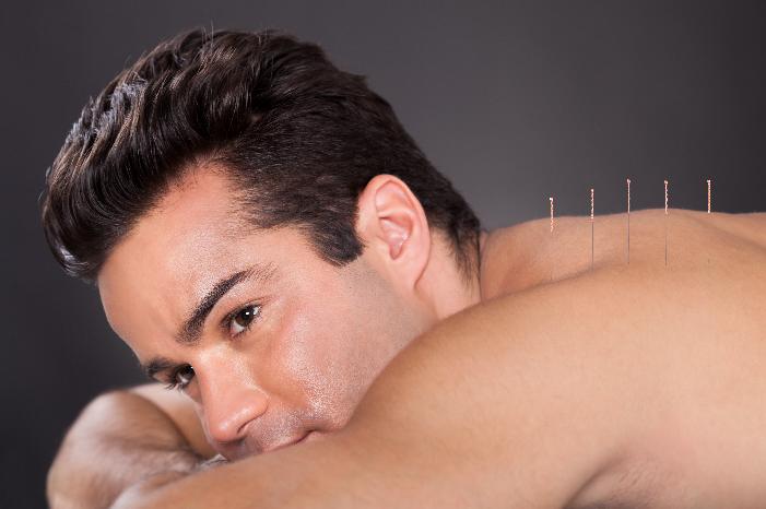 acupuncture spa